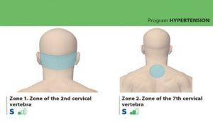 Slikovni primer priporočene terapije na zaslonu aparata